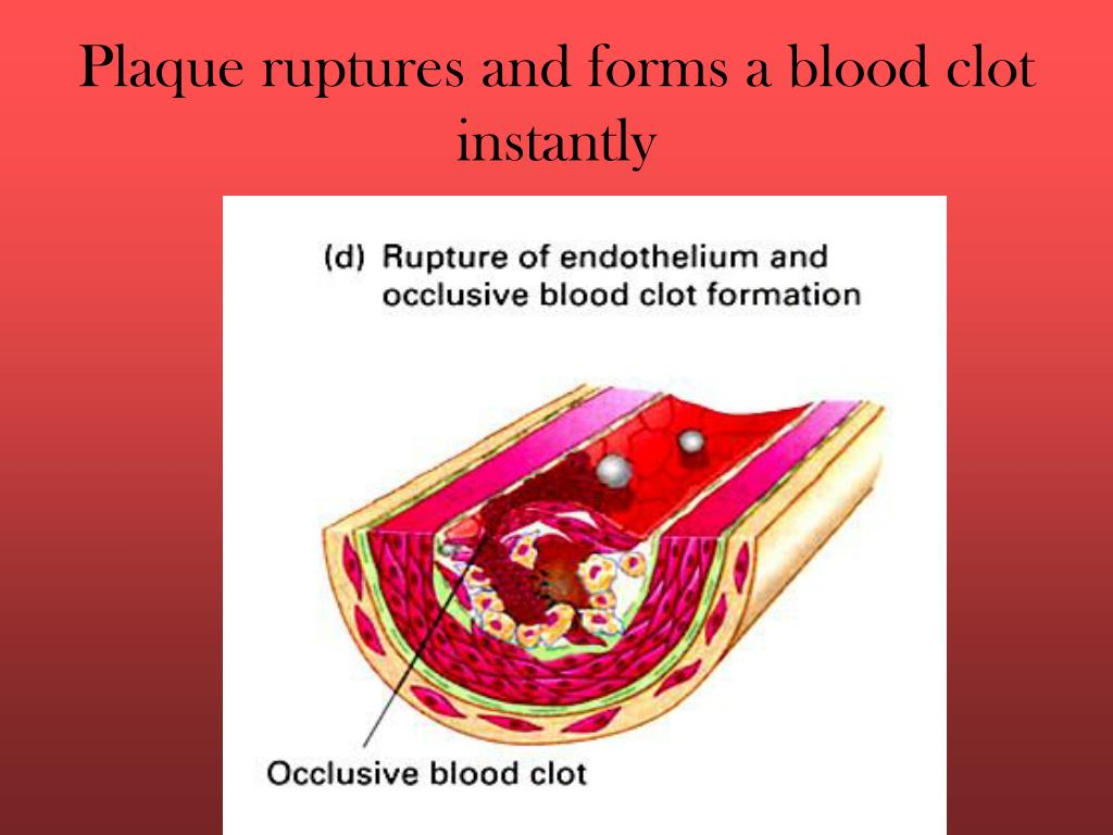 Plaque ruptures and forms a blood clot instantly