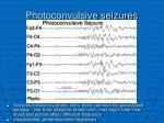 photoconvulsive seizures