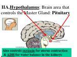 iia hypothalamus brain area that controls the master gland pituitary