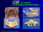 for implant 3 d modeling and drill guides