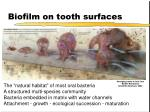 biofilm on tooth surfaces