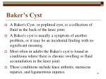 baker s cyst