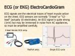 ecg or ekg electrocardiogram