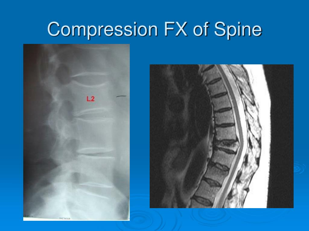 Compression FX of Spine