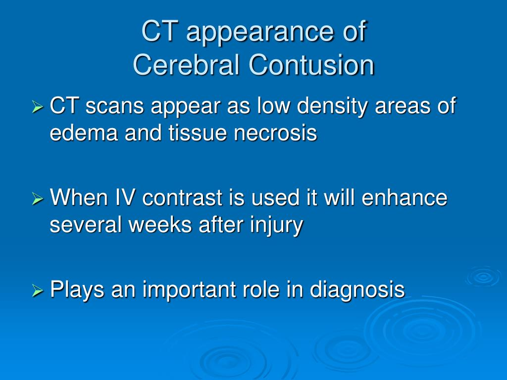 CT appearance of