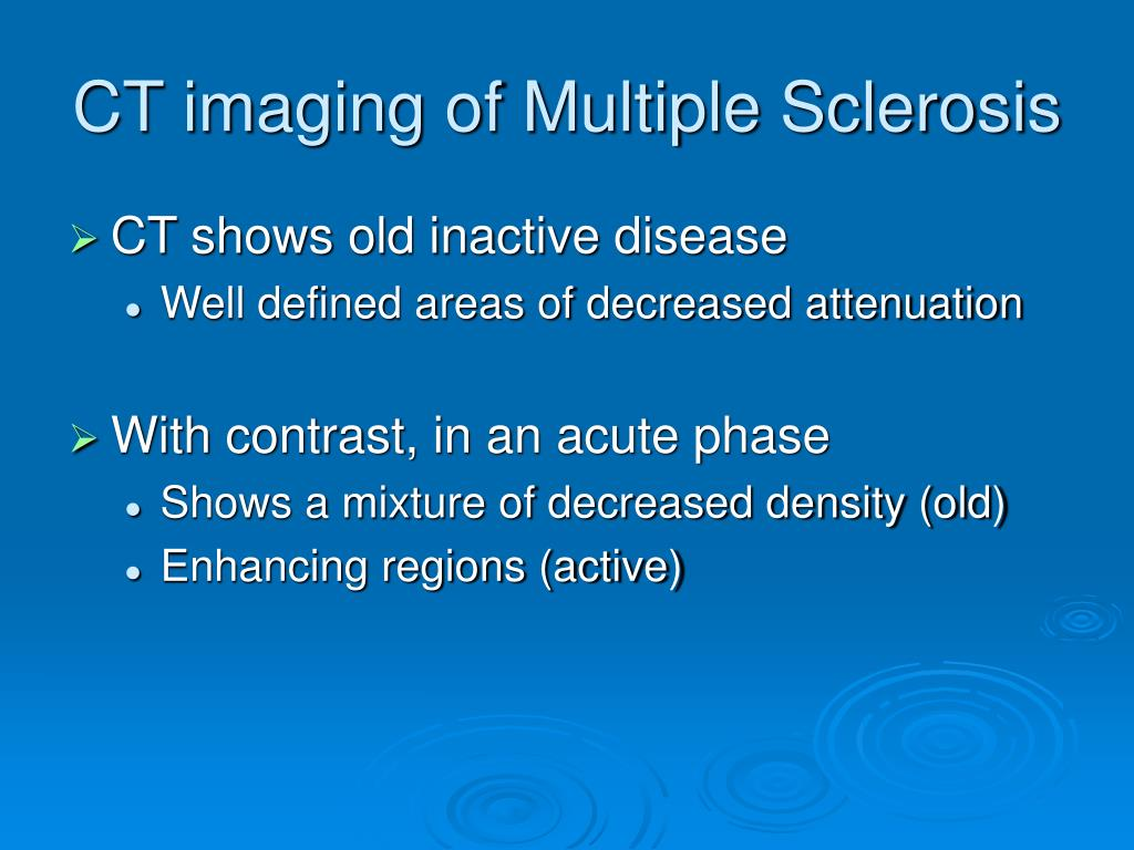 CT imaging of Multiple Sclerosis