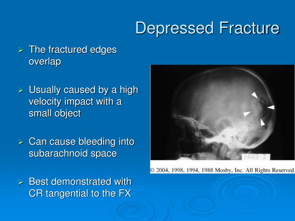 Depressed Fracture
