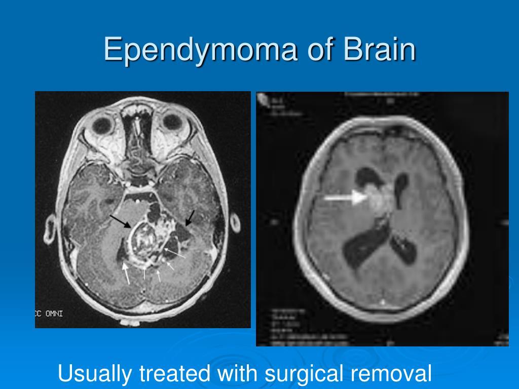 Ependymoma of Brain