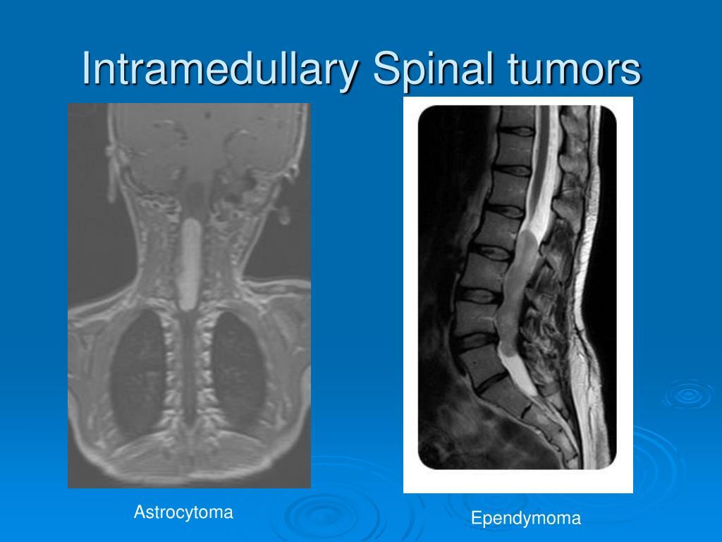 Intramedullary Spinal tumors