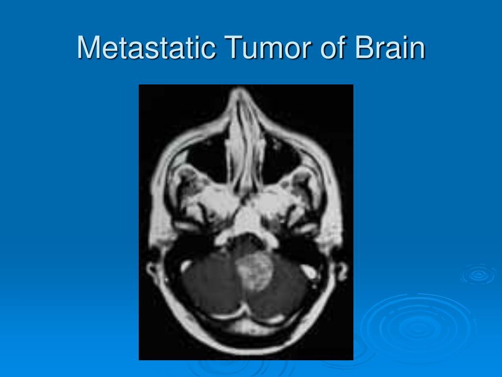 Metastatic Tumor of Brain