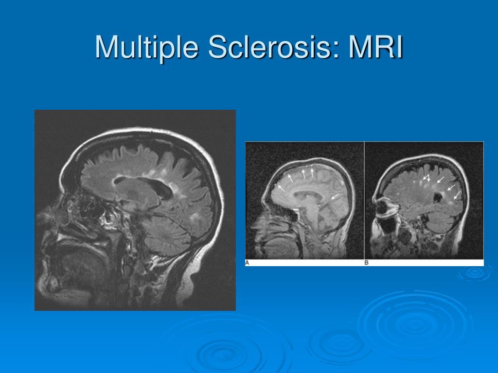 Multiple Sclerosis: MRI
