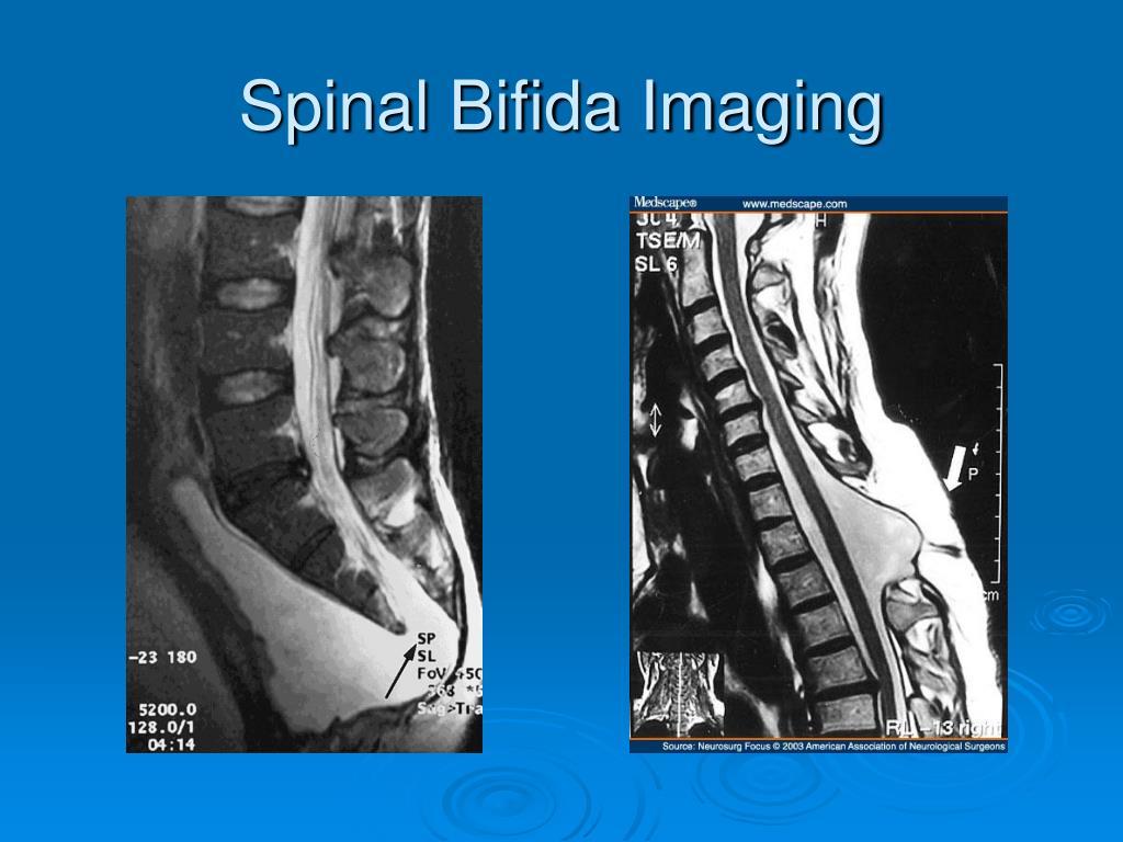 Spinal Bifida Imaging