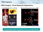 her2 imaging novel diagnostic applications
