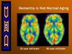 dementia is not normal aging