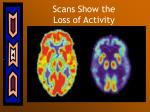 scans show the loss of activity