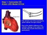 step 1 cannulate cs attain lds model 6216a