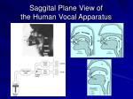 saggital plane view of the human vocal apparatus26