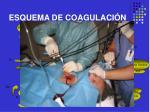 esquema de coagulaci n26