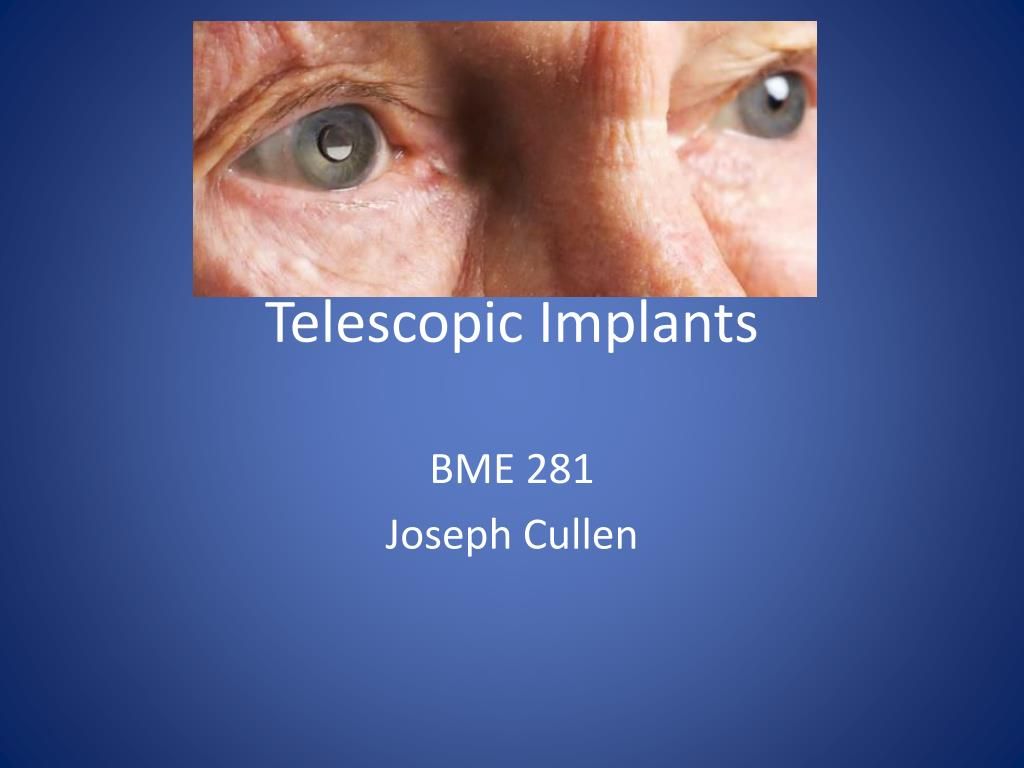 telescopic implants l.