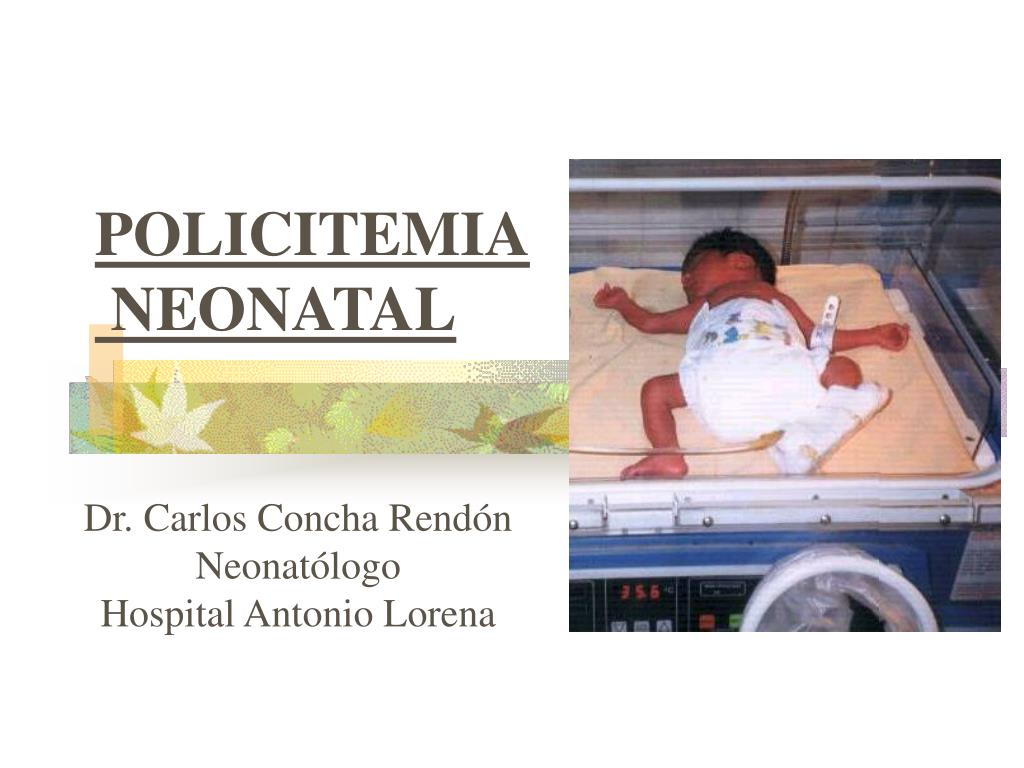 policitemia neonatal l.