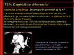 tepc diagn stico diferencial30