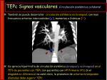 tepc signos vasculares circulaci n sist mica colateral19