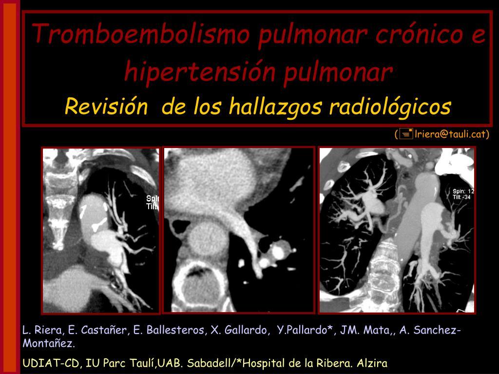 tromboembolismo pulmonar cr nico e hipertensi n pulmonar revisi n de los hallazgos radiol gicos l.