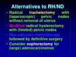 alternatives to rh nd