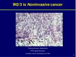 in2 3 is noninvasive cancer