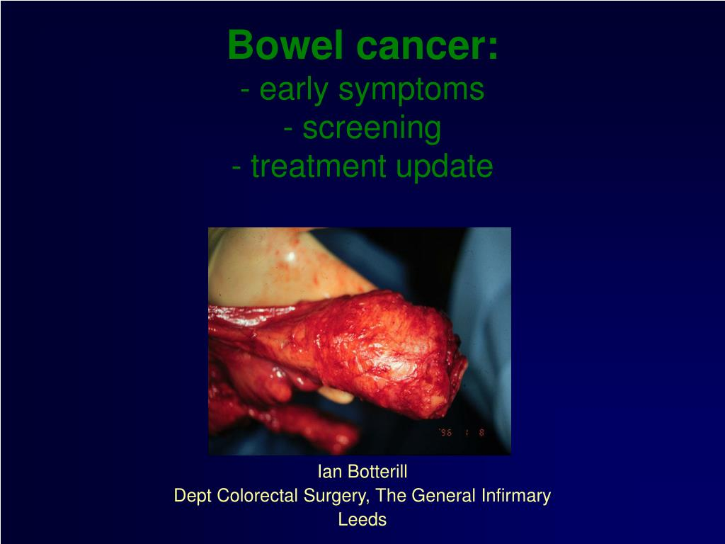 bowel cancer early symptoms screening treatment update l.