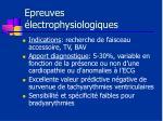 epreuves lectrophysiologiques