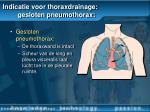 indicatie voor thoraxdrainage gesloten pneumothorax