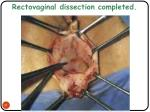 rectovaginal dissection completed