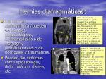hernias diafragm ticas14