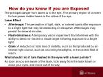 how do you know if you are exposed33