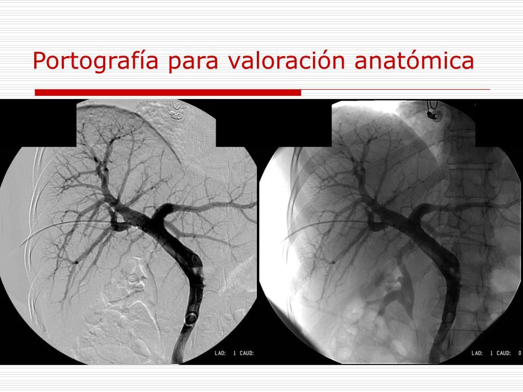 Portografía para valoración anatómica