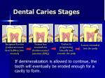 dental caries stages19