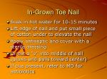 in grown toe nail