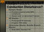 ectopic focus or conduction disturbance