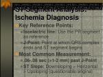 st segment analysis ischemia diagnosis