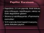 papiller karsinom33
