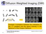 diffusion weighted imaging dwi