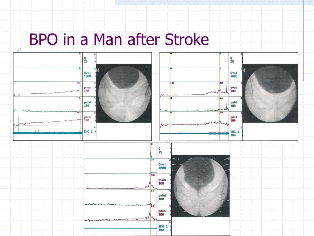 BPO in a Man after Stroke