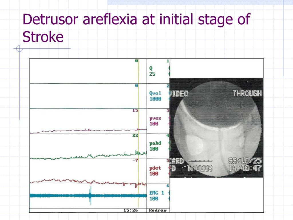 Detrusor areflexia at initial stage of Stroke
