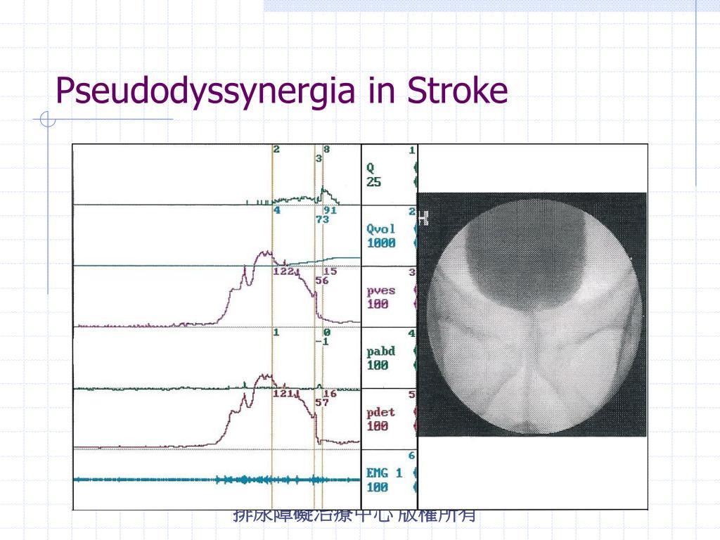 Pseudodyssynergia in Stroke