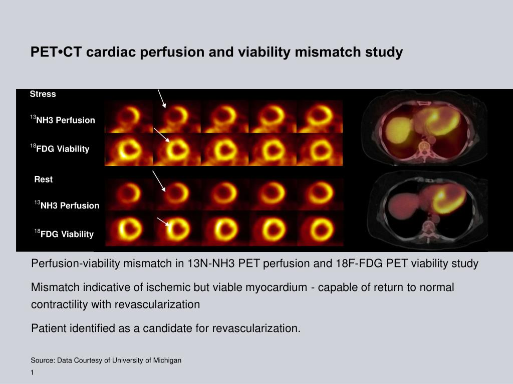 pet ct cardiac perfusion and viability mismatch study l.