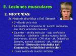 e lesiones musculares33