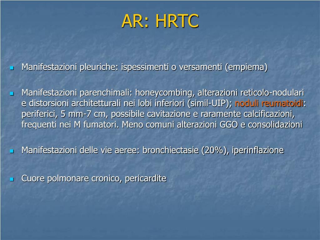 AR: HRTC