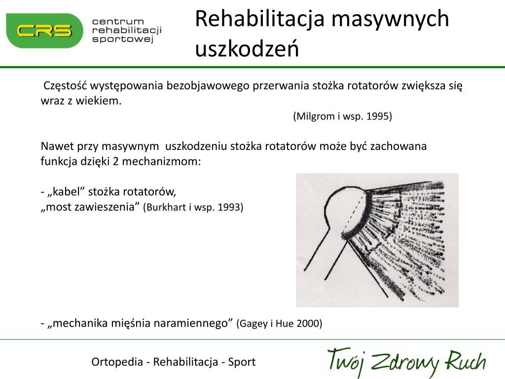 Rehabilitacja masywnych uszkodzeń