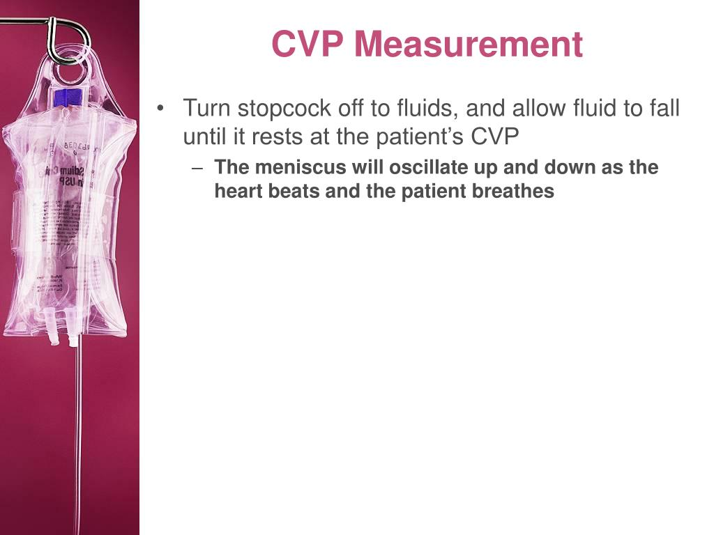 CVP Measurement